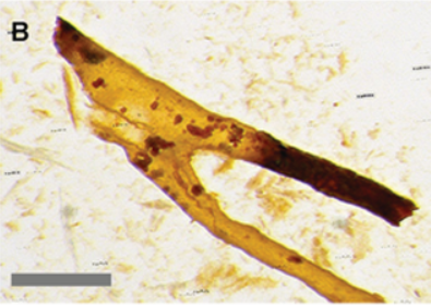 Branching, transparent tube-like structures that match the porosity of the trabecular bone. Small red grains were found to be iron oxide framboids. Source: Kaye, et al., PLoS ONE 3(7): e2808